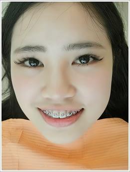 高雄,牙齒矯正,牙醫診所,牙科矯正,戴牙套,裝牙套,高雄牙齒矯正,牙科矯正費用,高雄裝牙套,牙齒矯正權威,牙齒矯正專科,高雄牙齒矯正診所推薦,高雄裝牙套診所推薦,高雄左營區牙醫矯正,牙醫診所,高雄牙醫權威,高雄牙科醫生,牙齒矯正專科,牙齒矯正分期,牙齒矯正權威,牙齒矯正醫生推薦