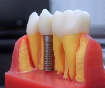 【植牙推薦台北】分享台北牙科診所~牙醫植牙技術很推薦~分享診所資訊,微創植牙價格,完整的諮詢和說明是我決定進行植牙的關鍵。