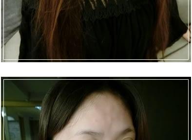 【台南肉毒介紹】到台南醫美診所做玻尿酸打下巴及唇珠,微整效果超自然~肉毒打下巴皺紋也很厲害!不虧是評價很好價位實在的醫美診所呀!
