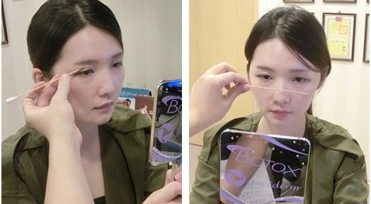 【台南縫雙眼皮推薦】台南整形外科診所縫雙眼皮整型手術推薦~好滿意在台南醫美診所做的雙眼皮手術,真的好自然又好有神唷~~