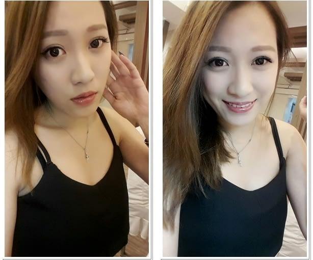【台北縫雙眼皮】私心推薦台北醫美診所的韓式訂書針雙眼皮手術,價錢也相當公道,好滿意我現在的雙眼皮唷~超自然超有神!