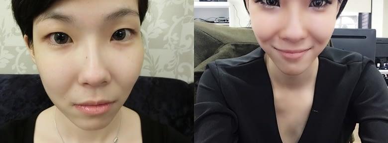 【縫雙眼皮台南】台南醫美診所割雙眼皮資訊分享○整形雙眼皮手術交給朋友推薦給我的台南縫雙眼皮權威,釘書機雙眼皮心得私心分享~
