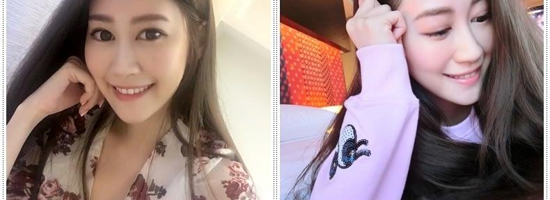 【極線音波拉皮】評價超好的台南醫美診所的童顏針打蘋果肌好專業,打3D聚左旋乳酸果然有效果!Ulthera極線音波拉皮費用也超划算~